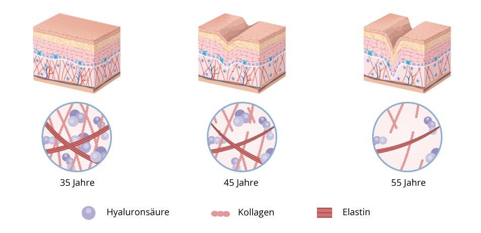 Hautalterung Abbildung