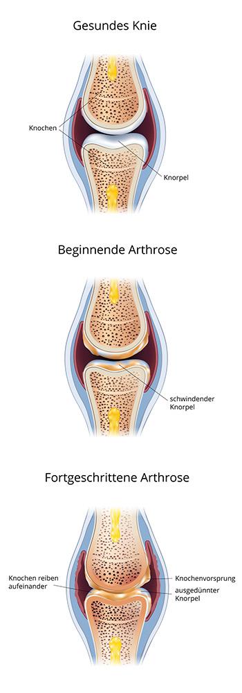 Verlauf einer Arthrose | Bodfeld online Apotheke